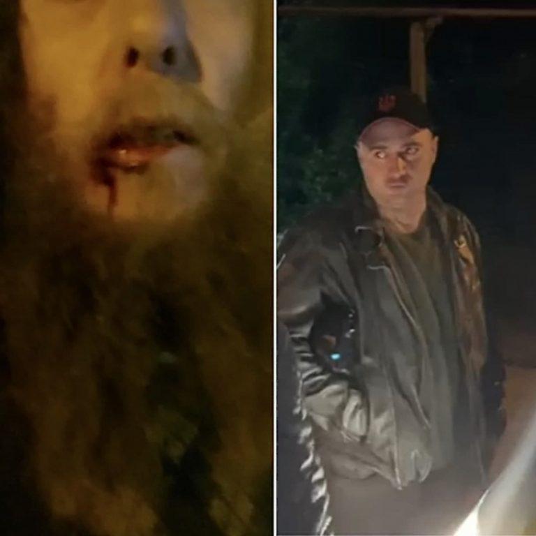 יהודי חסיד ברסלב הותקף באומן סמוך לציון רבי נחמן מברסלב